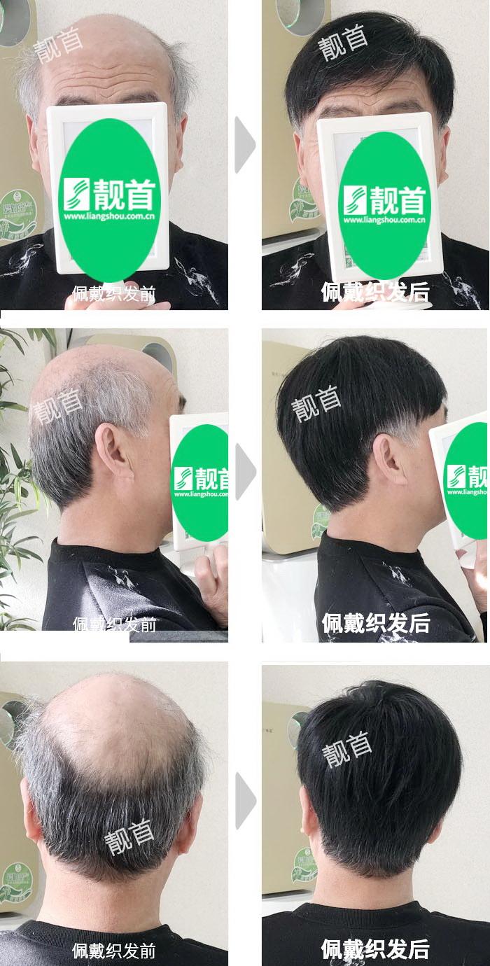 老年-盖白发-大面积-男士真人发假发-织发补发实拍案例