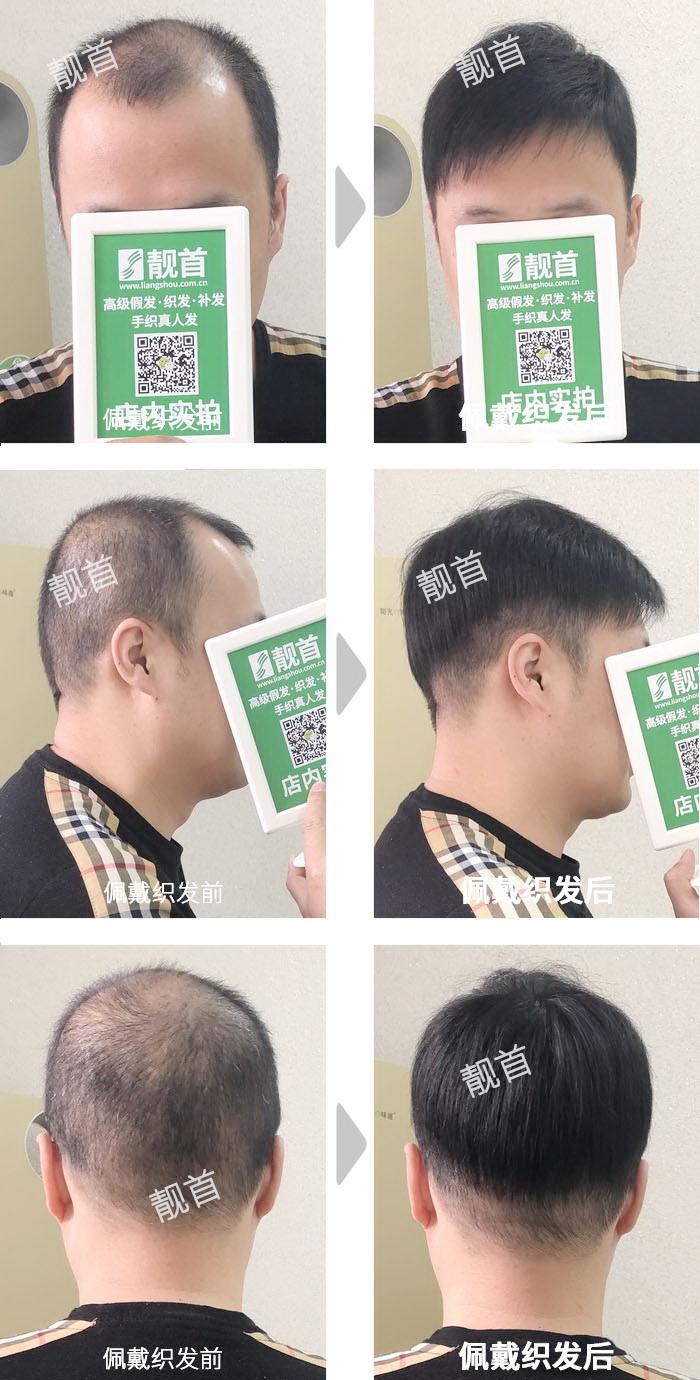 自由式-头顶大面积稀少-青年男士真人发假发-织发补发实拍案例