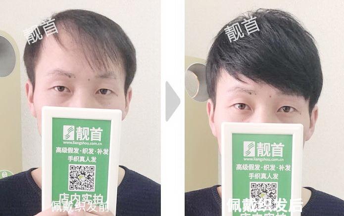 青年-头顶稀少-中老年人假发实拍案例