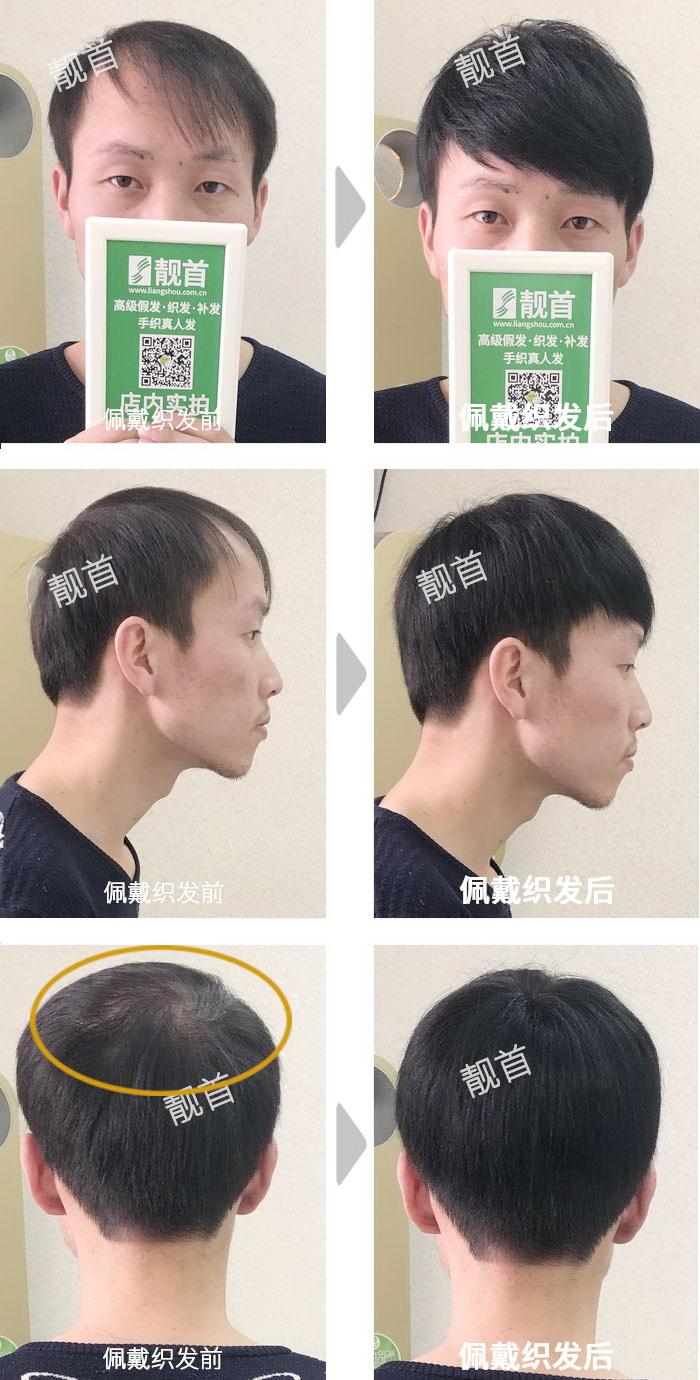 青年-头顶稀少-男士织发补发实拍案例