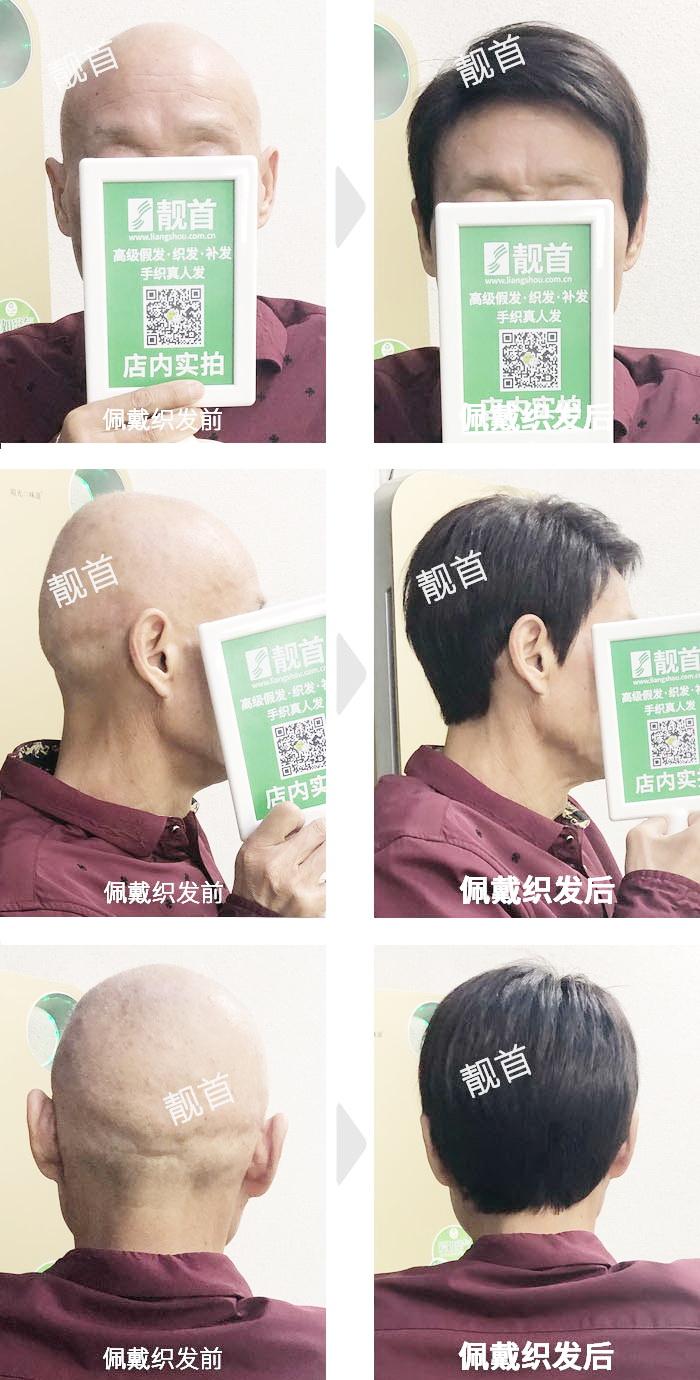 老年-光头男士织发补发实拍案例