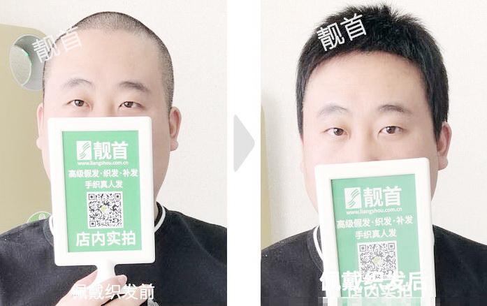 中年-超级短发全头-男士织发补发