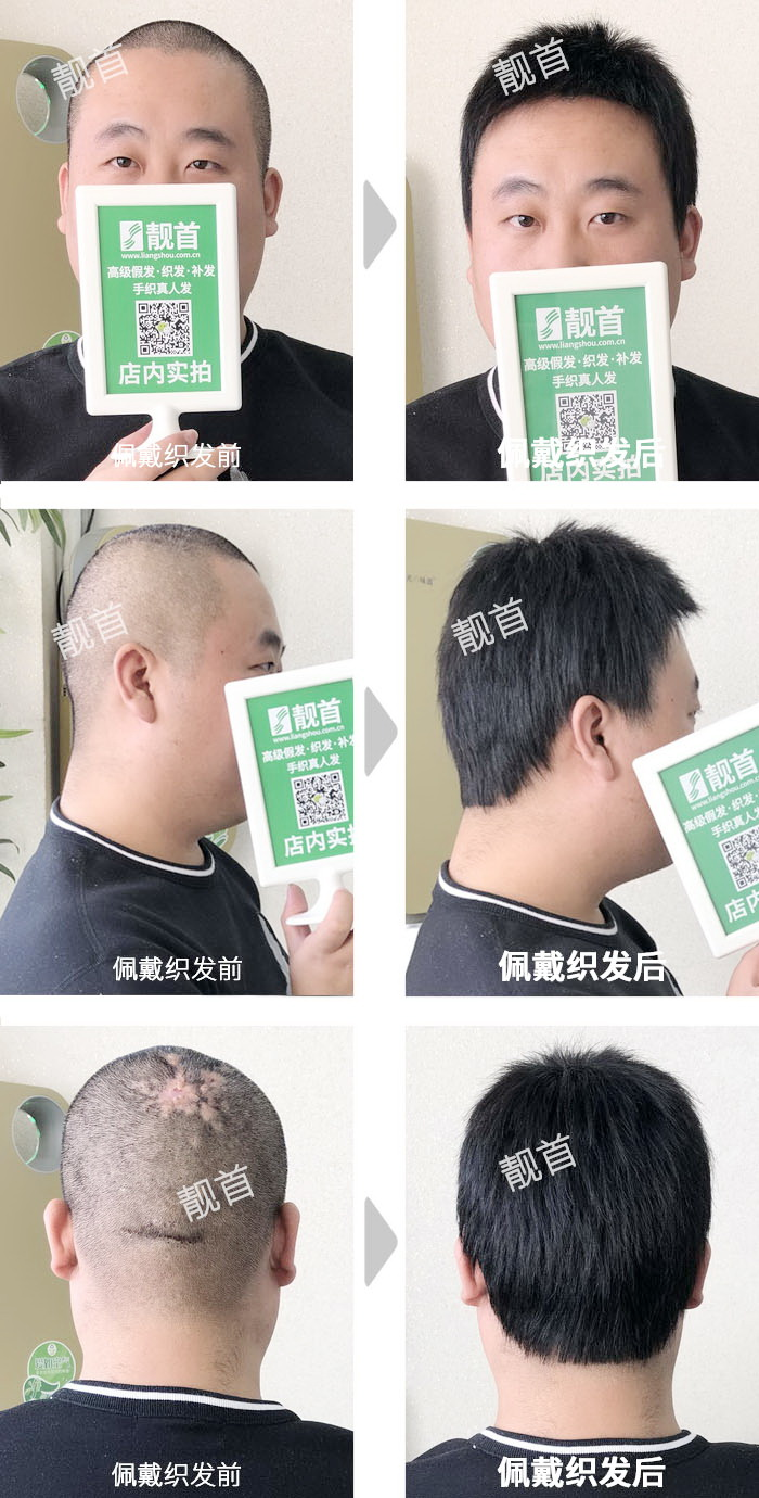 中年-超级短发全头-男士织发补发实拍案例