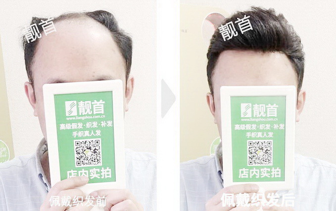背头-青年-中老年人假发实拍案例