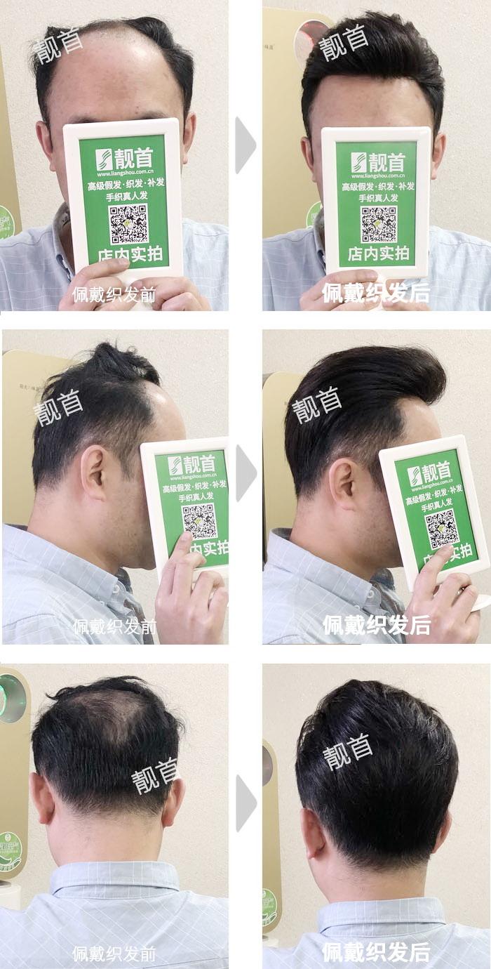 背头-青年-男士织发补发实拍案例