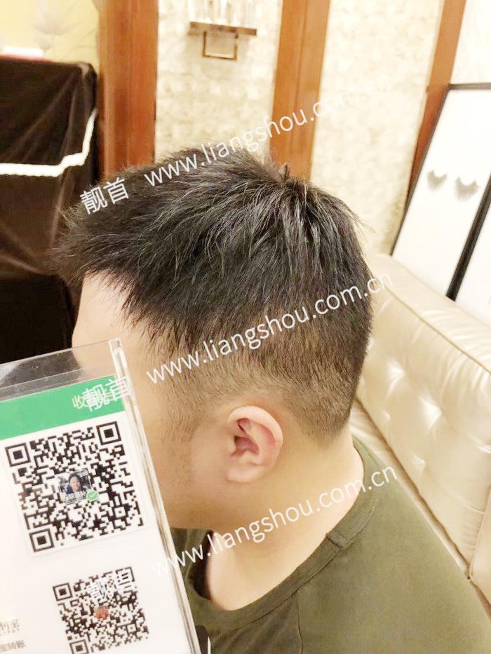 短发-青年-中年-发块-男织发补发案例图