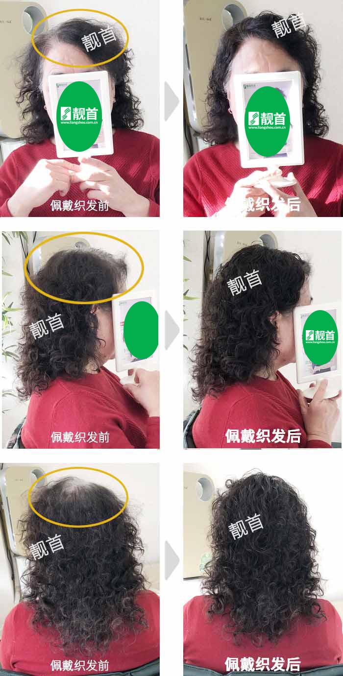 头顶稀少-盖白发-染烫-女士-真人发假发实拍案例