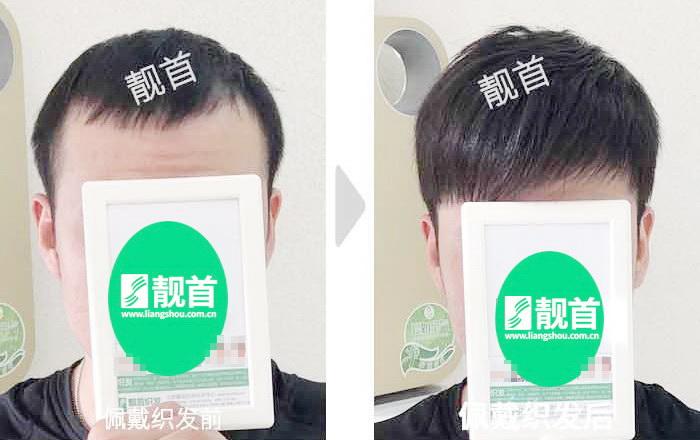 自由式-假发头顶补发块
