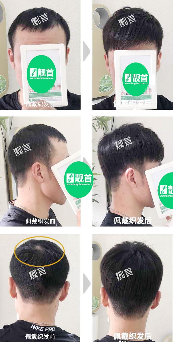 自由式-青年-发块男士补发织发真人发假发实拍案例