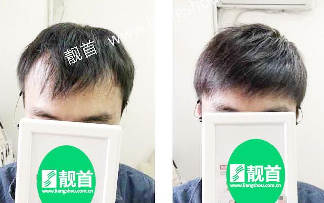 青年-小面积-自由式-男士织发-补发-真人发假发-实拍案例