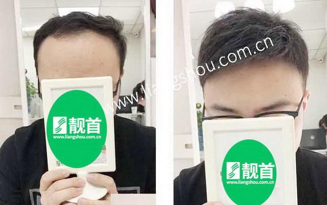 青年-自由式-广州增发补发