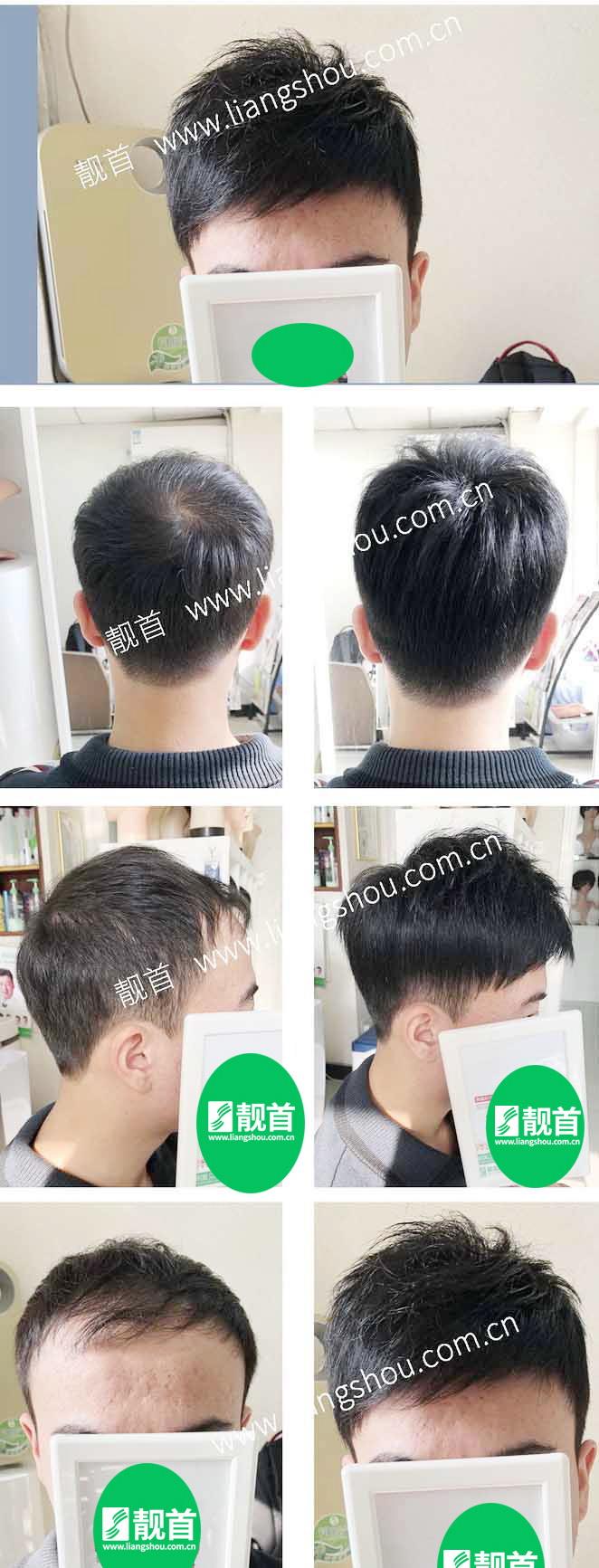 青年-短发-自由式-小面积-男士织发-补发-真人发假发-实拍案例