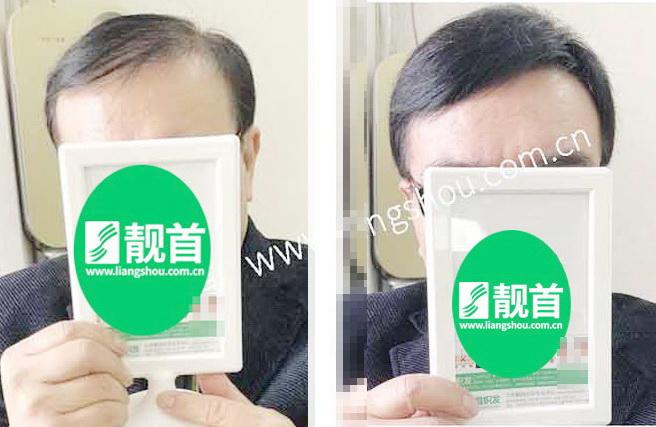 老年-短发-自由式-假发头顶补发块
