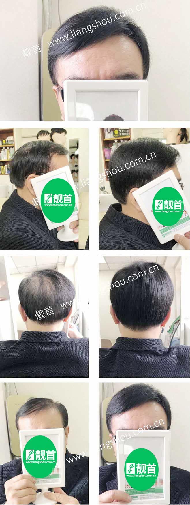 老年-短发-自由式-发块-男士-补发-真人发假发-实拍案例