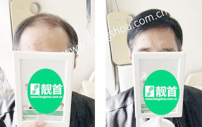 老年-短发-假发头顶补发块