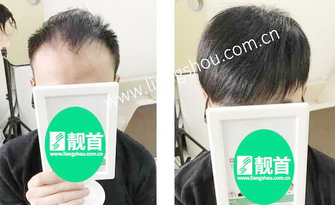 青年-假发头顶补发块