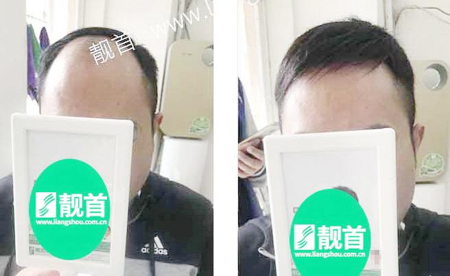中年-短发-局部-男士织发-补发-