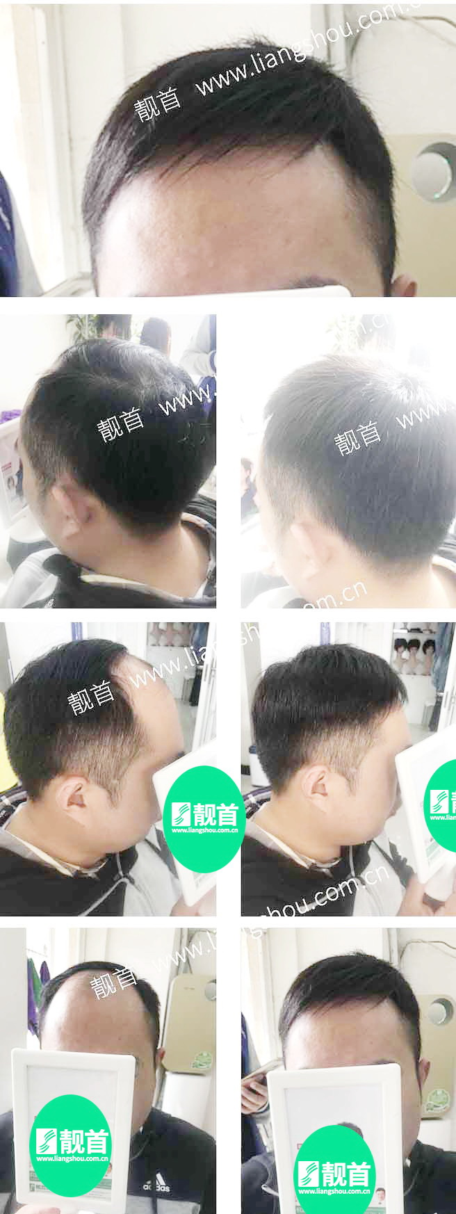中年-短发-局部-男士织发-补发-真人发假发-实拍案例