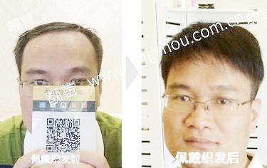 中年-短发-天津补发案例