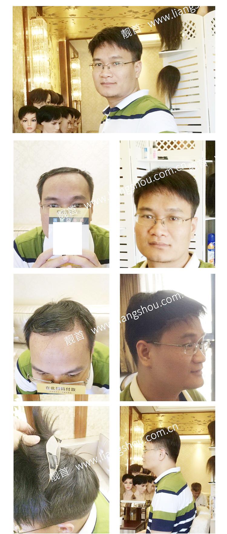 中年-短发-自由式-男士织发-补发-真人发假发-实拍案例