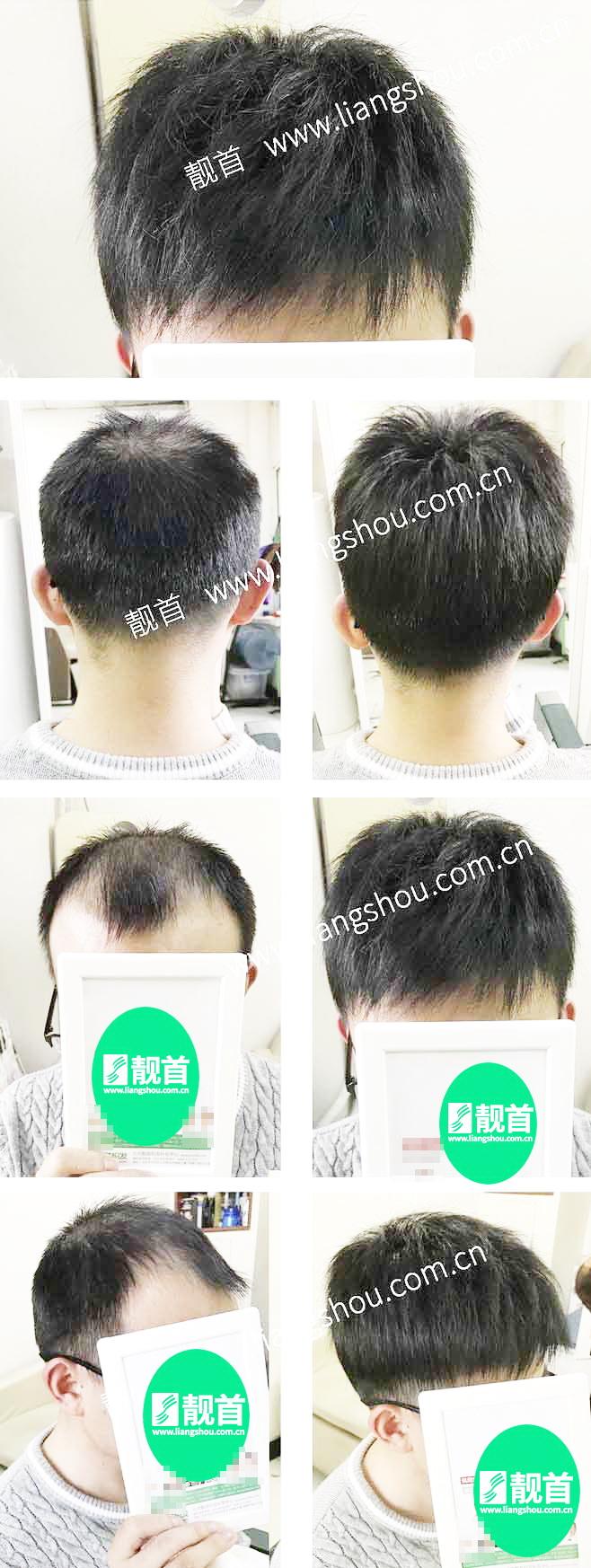 自由式-青年-局部-发块男士织发-补发-真人发假发-实拍案例