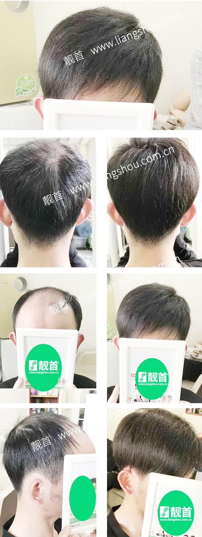 自由式-青年-中年-男士织发-补发-真人发假发-实拍案例