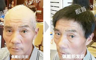 老年-全头-大面-短发男士织发-补