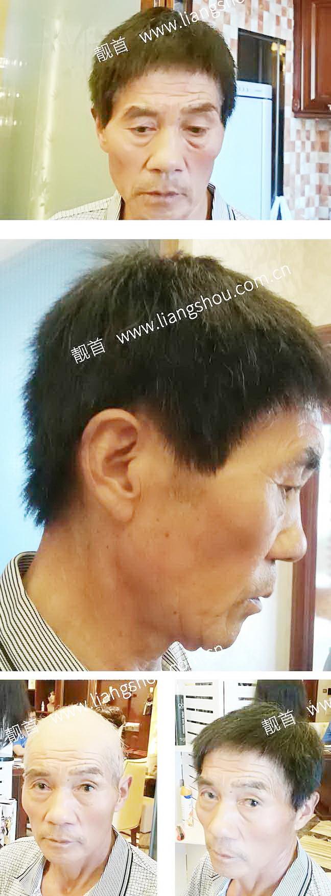 老年-全头-大面-短发男士织发-补发-真人发假发-实拍案例