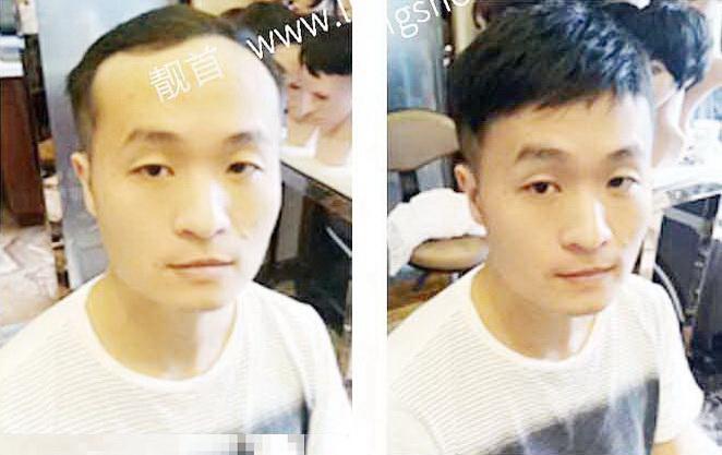 短发-青年-小面积-男士织发-补发