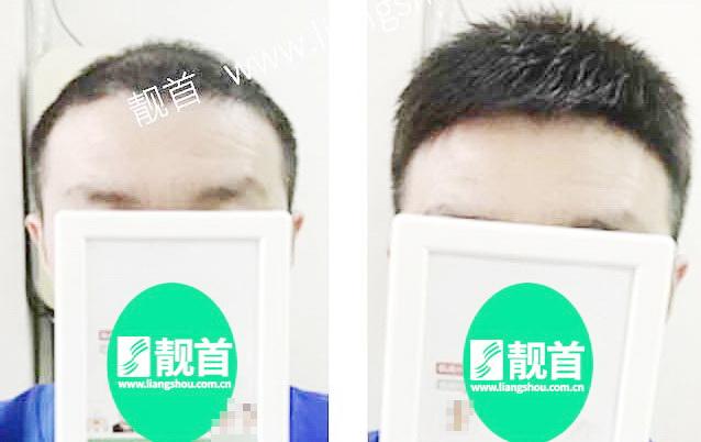 短寸-青年-中年-发块男士织发-补