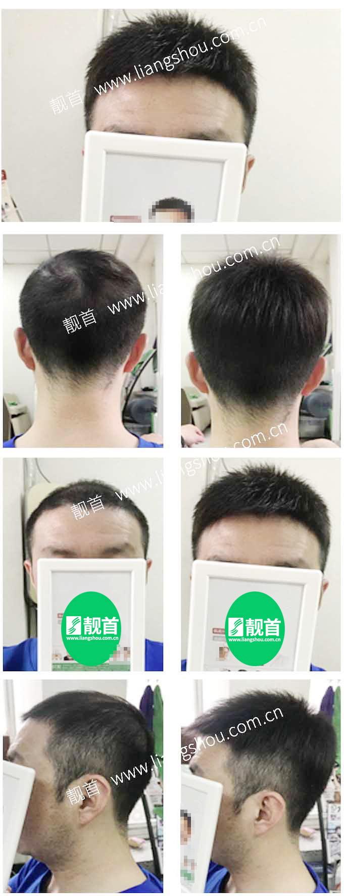 短寸-青年-中年-发块男士织发-补发-真人发假发-实拍案例