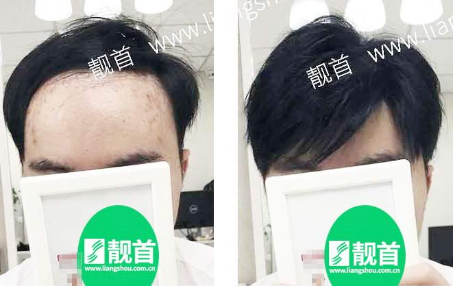 男士-假发头顶补发块