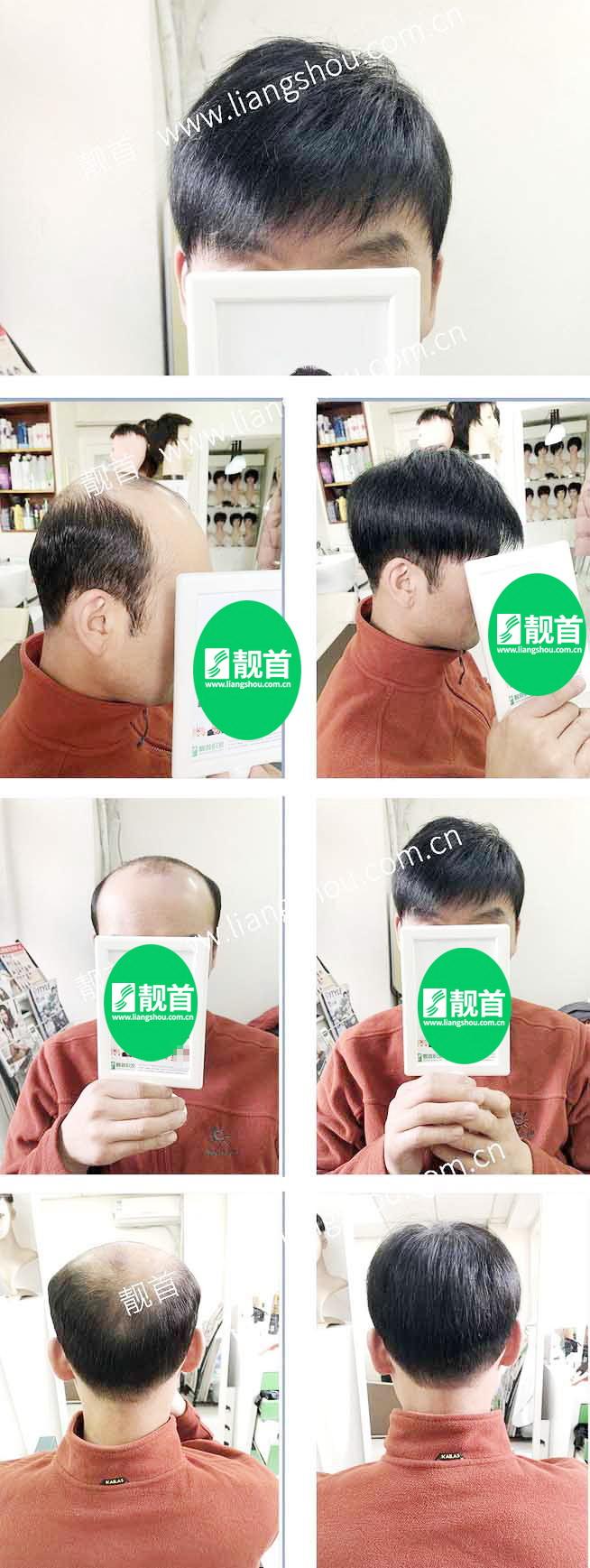 大面积-青年中年-自由式男士织发-补发-真人发假发-实拍案例