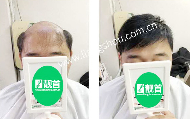大面积-真头发假发套实拍案例