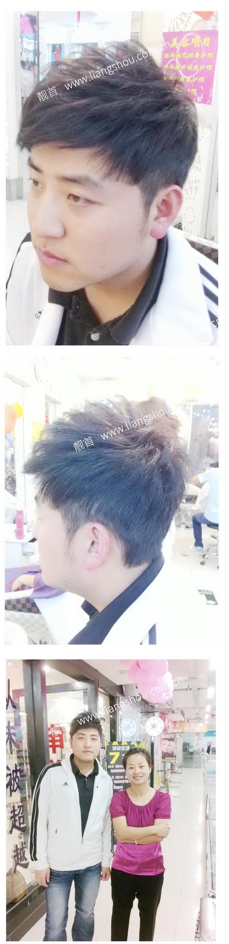 青年-自由式发块-男织发补发案例图