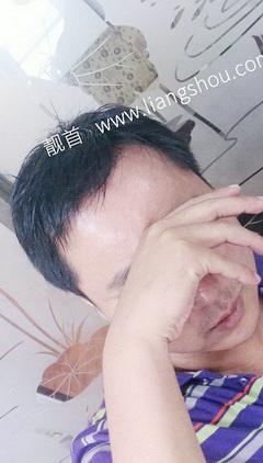 中年-短发-发块-男织发补发案例