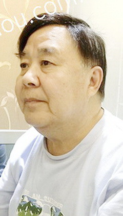 老年-自由式-发块-发际线-广州增发补发案例图