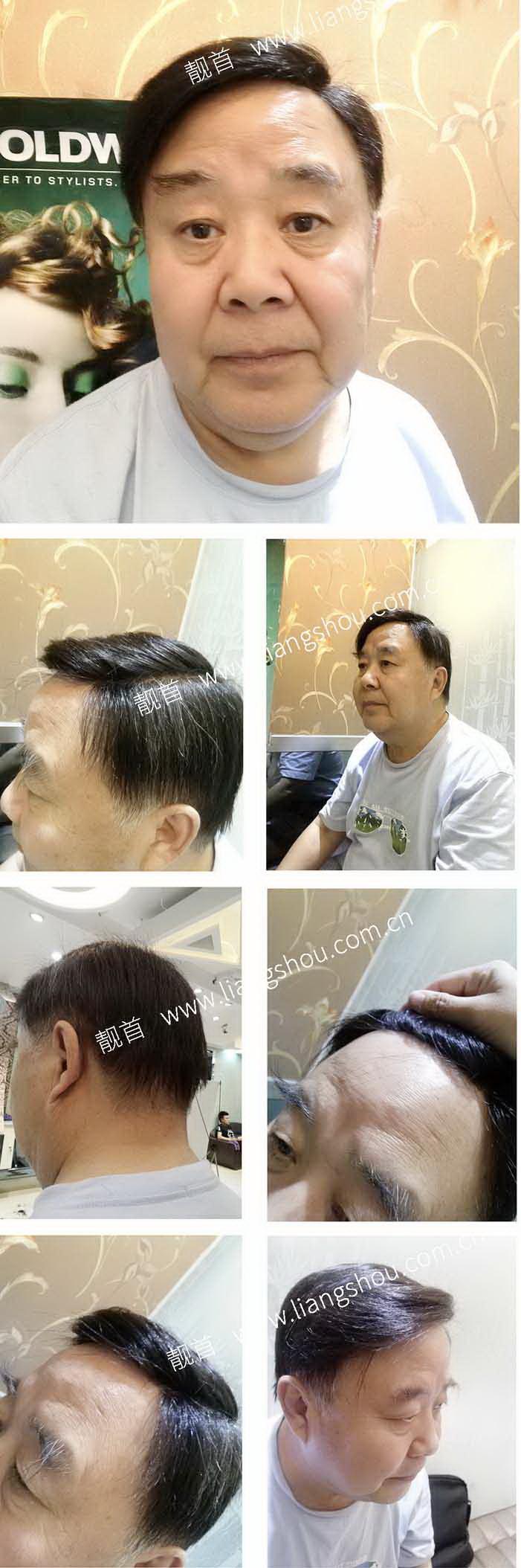 老年-自由式-发块-发际线-男织发补发案例图