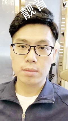 青年-局部-发际线补发-假发头顶补发块案例图