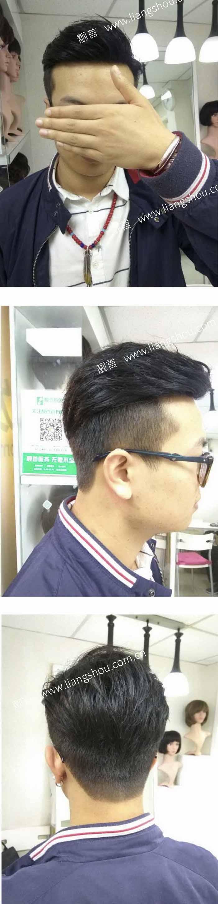 发际线-发块-局部-青年-男织发补发案例图