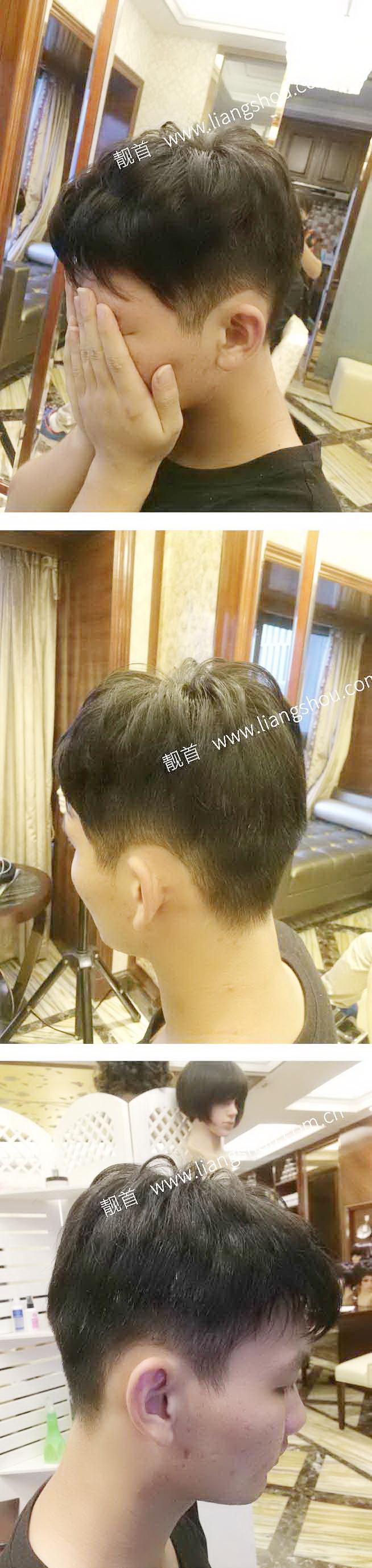 青年-自由式-发块-男织发补发案例图