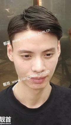 发际线补发-青年-假发头顶补发块案例图