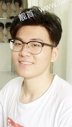局部-青年-发际线-假发头顶补发块案例图