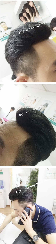 青年-背头-发块-男织发补发案例图