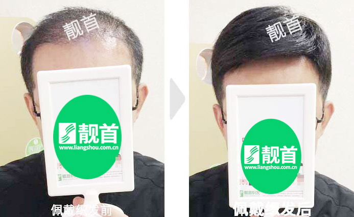 发块-短发-中年-自由式-男士-补