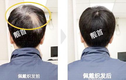 小面积-中年-局部-男士补发织发