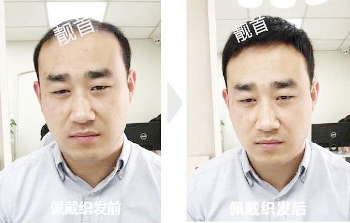 青年-短发-局部-男士补发织发实