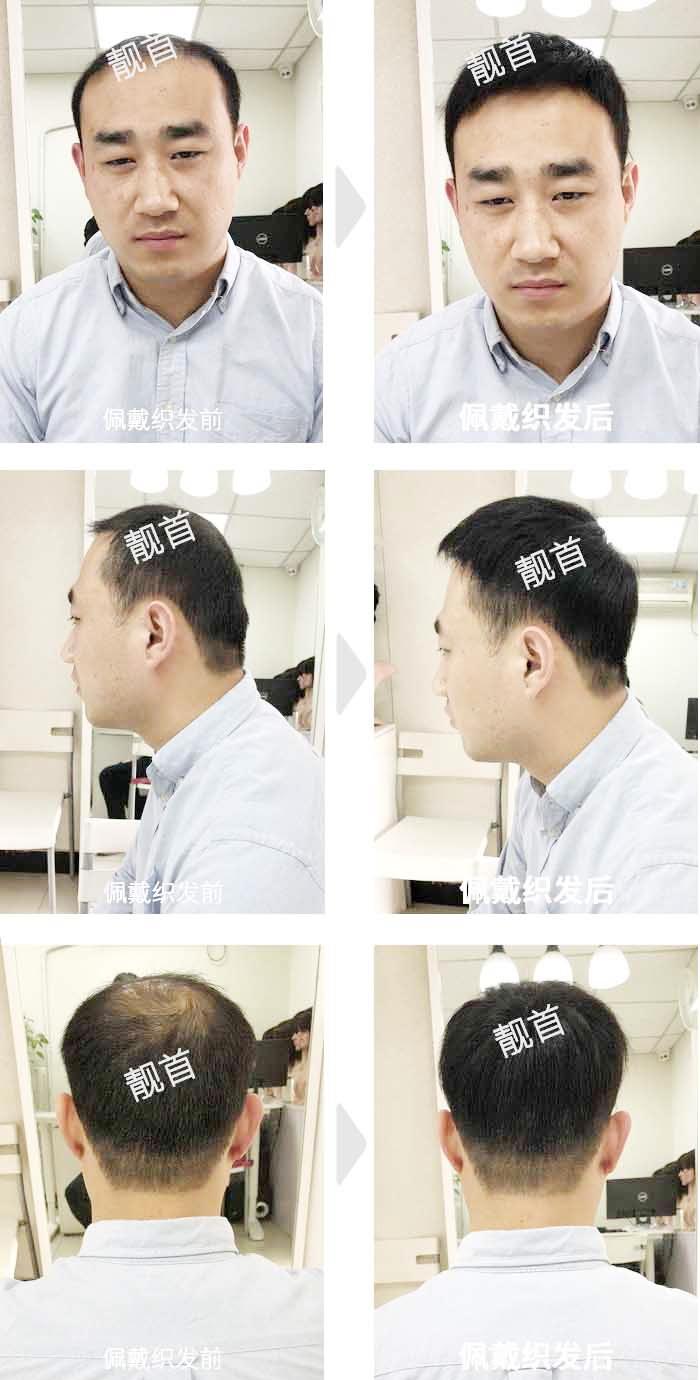 青年-短发-局部-男士补发织发实拍案例