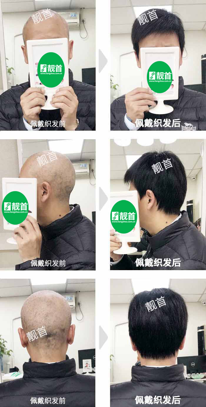 中年-光头-自由式-男士补发织发-真人发假发-实拍案例