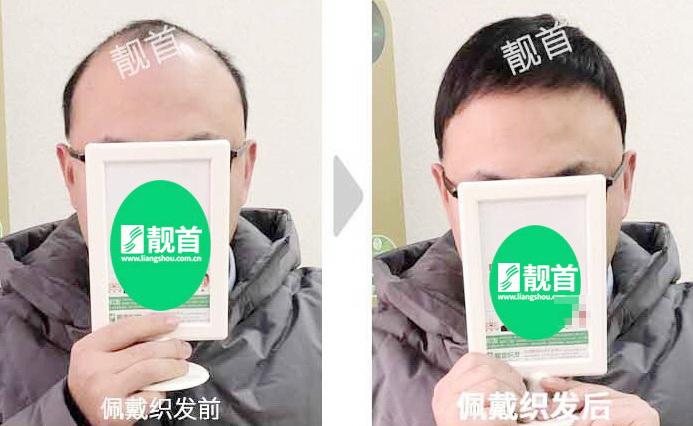 中年-短发-发块-男士补发织发实